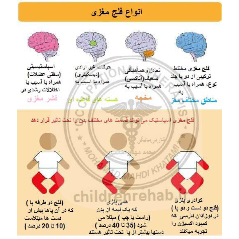 کاردرمانی در کودکان فلج مغزی