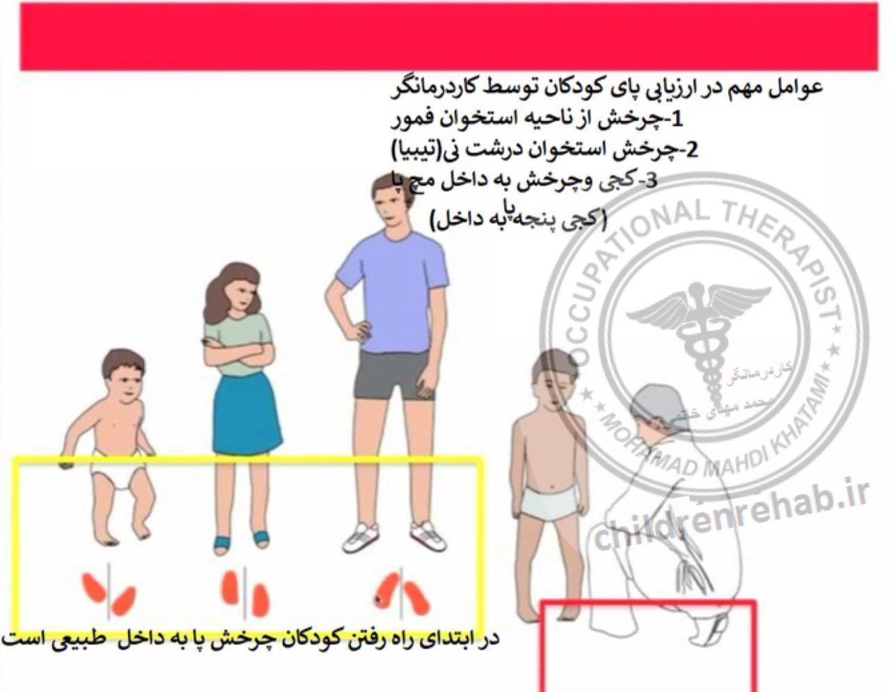 کاردرمانی در کودکان فلج مغزی برای راه رفتن(کاردرمانی جسمی)